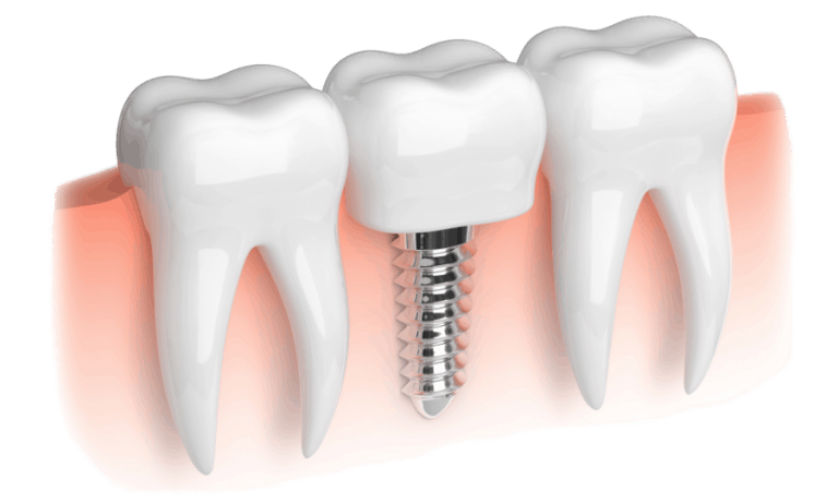 Realistic View of a Dental Implant