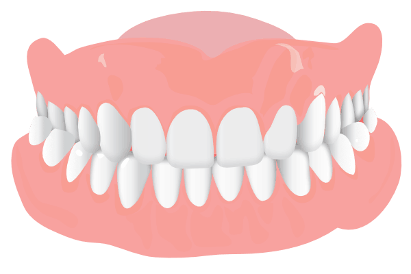 Orthodonist Treatment - Graphics of a teeth structure (Crossbite)