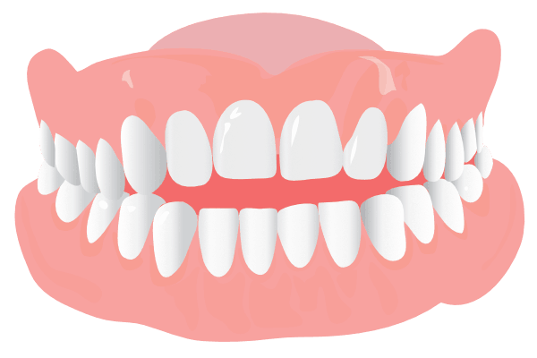 Orthodonist Treatment - Graphics of an open bite teeth structure
