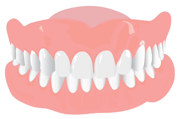 Orthodonist Treatment - Graphics of a teeth structure (Overbite)