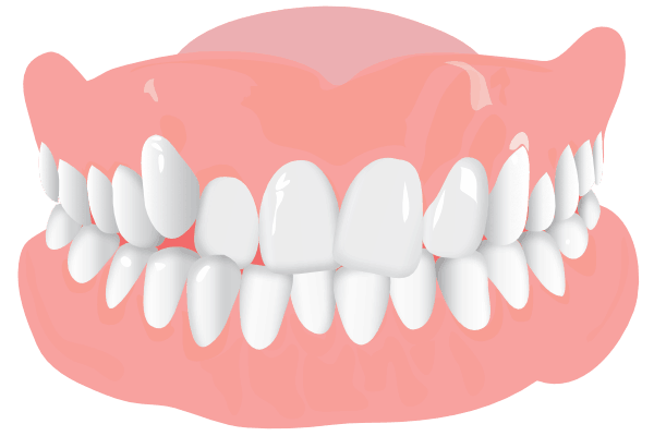 Orthodonist Treatment - Graphics of a teeth structure (Overcrowding)