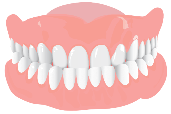 Orthodonist Treatment - Graphics of a teeth structure (Underbite)