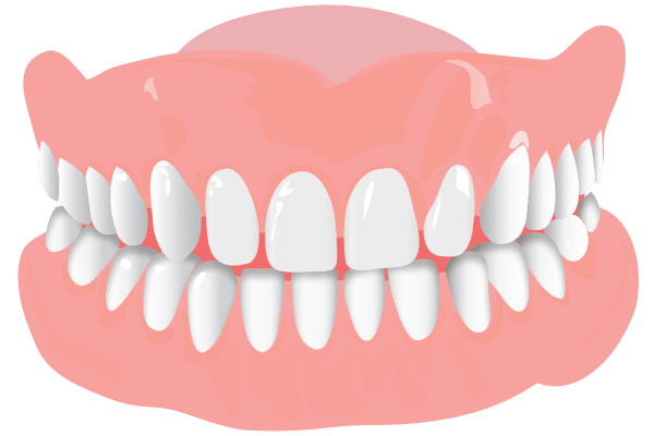 Orthodonist Treatment - Graphics of a teeth structure (Widely Spaced)