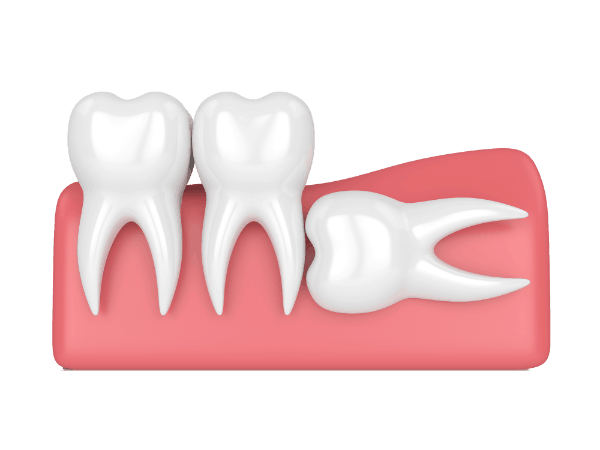 Graphics of horizontal impaction wisdom tooth
