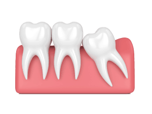 Graphics of Wisdom Tooth Mesial Impaction