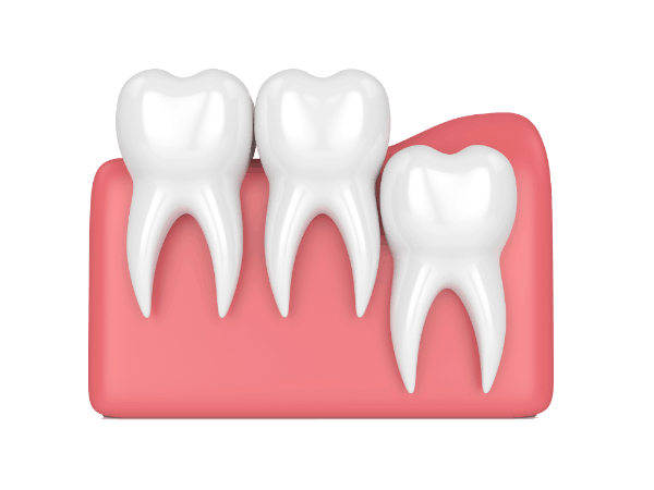 Graphics of Wisdom Tooth Vertical Impaction