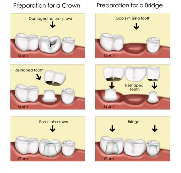 Dental Crown Vs Dental Bridge - Procedure