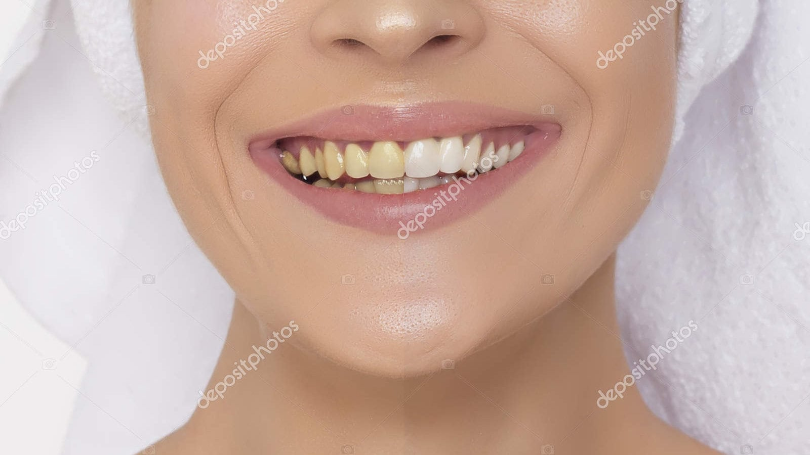 stained-teeth-sample