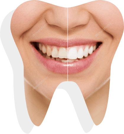 teeth-whitening-banner-sample