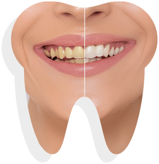 teeth-whitening-banner-sample-01