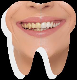 teeth-whitening-banner-sample-01