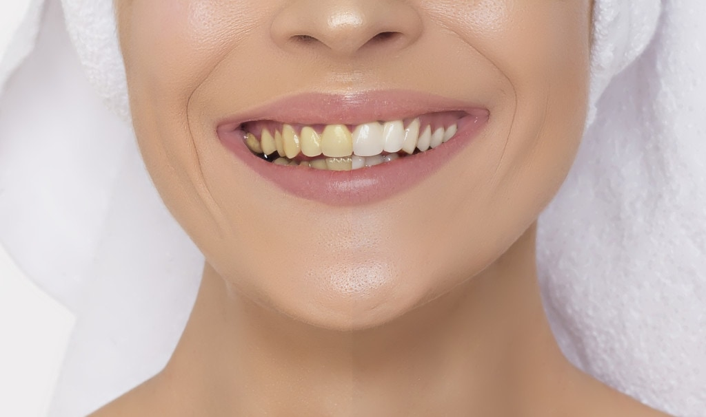 Teeth whitening: A woman with half of her teeth whitened