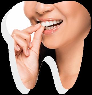 All Smiles Dental Care: dental veneers banner