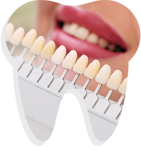 Selecting the suitable tooth colour for Crowns and Bridges