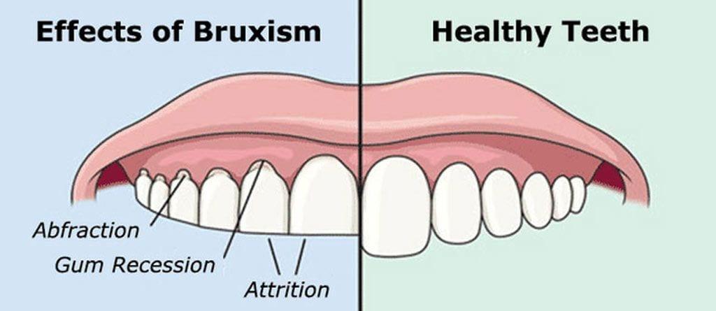 ASD_effects of bruxism_healthy teeth